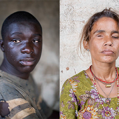 Graeme Robertson: Framing Perceptions – a Sightsavers exhibition | Gallery of Photography  Meeting House Square Temple Bar, Dublin 2 | Wednesday 24 February to Sunday 6 March 2016 | to